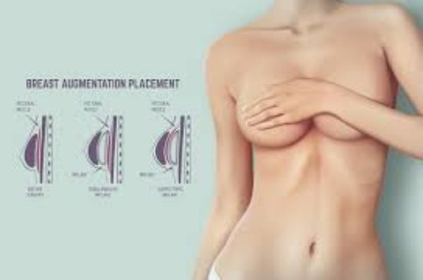 Cat de necesara este augmentarea mamara? Operatie intre moft si necesitate