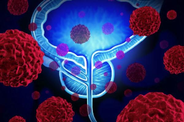 Cancerul de prostata poate fi prevenit?